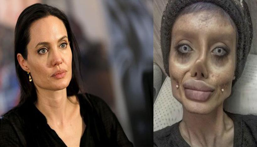 19χρονη έκανε 50 πλαστικές για να μοιάσει στην Αντζελίνα Τζολί και έγινε σαν ζόμπι